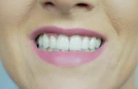 Nowy uśmiech p. Magdaleny