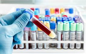 Prywatne testy na koronawirusa już dostępne. Koszt jednego to 500 zł