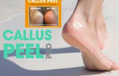 Podologia - pedicure leczniczy, wrastające paznokcie, modzele odciski, usuwanie brodawki, rekonstrukcje paznokci
