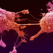 Profilaktyka raka piersi - wykład