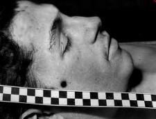 Zdjęcie z sekcji zwłok Antoniego Browarczyka z widoczną kulą w głowie.