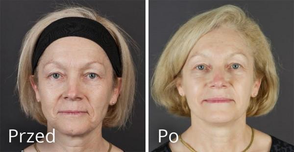 Kobieta 57 lat przed i po zabiegu preparatami Teosyal.