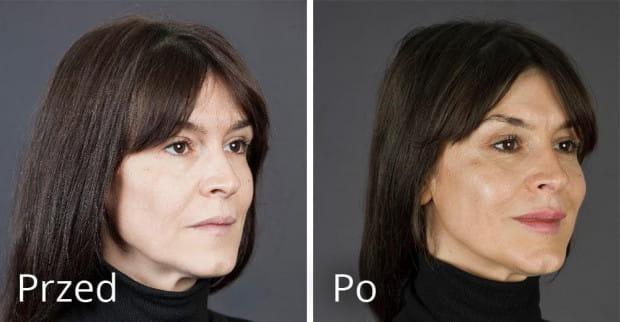 Kobieta 49 lat przed i po zabiegu preparatami Teosyal.