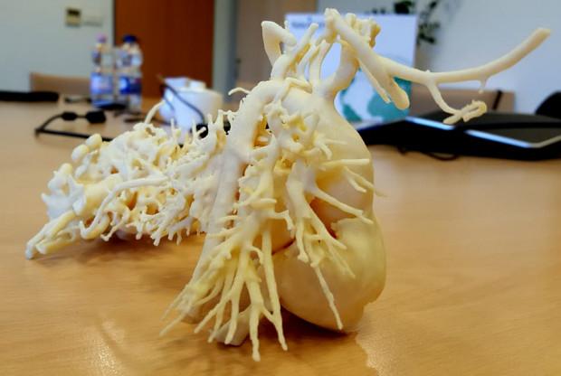 Pan Wojtek Wojtkowski najpierw walczył o zdrowie swojego synka. Teraz charytatywnie pomaga innym rodzicom chorych dzieci i opracowuje dla nich modele serca 3D.