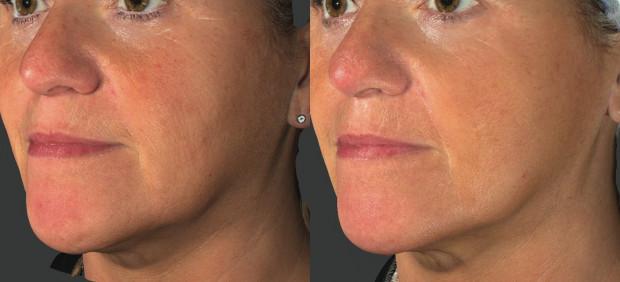 Zabieg Profhilo ma na celu redukcję efektów starzenia skóry. Efekty są widoczne po dwóch zabiegach.