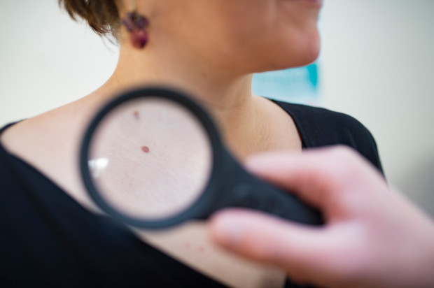 Od 2014 roku to lekarz POZ ma decydować, czy jest w stanie zająć się przypadkiem, z którym zgłasza się do niego pacjent, czy powinien wydać skierowanie do specjalisty. W rezultacie ścieżka diagnostyczna znacznie się wydłużyła i zanim pacjent (dla przykładu) ze znamieniem kwalifikującym się do usunięcia trafi pod skalpel, musi zaliczyć wizytę w poradni POZ i dermatologicznej.