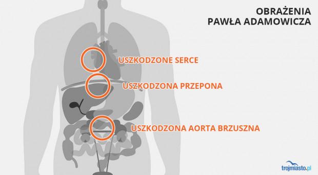 Obrażenia, jakich doznał Paweł Adamowicz.
