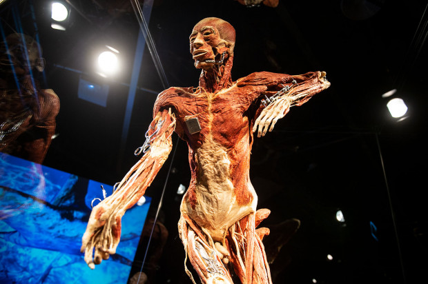 Eksponaty przedstawiają przeróżne zagadnienia ze świata anatomii, fizjologii i medycyny. Na zdjęciu plastynat z przykładami chirurgicznego zespajania kości za pomocą śrub, drutu i płytek (procedura osteosyntezy).