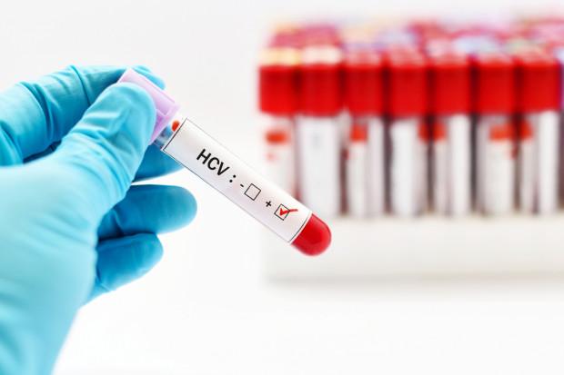 Szacuje się, że w Polsce osób zakażonych HCV może być 150 tys. Aż 86 proc. nic o tym nie wie.
