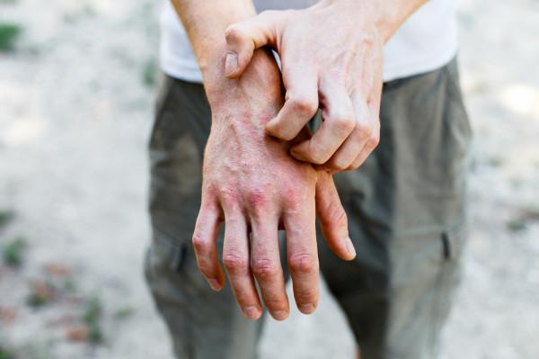 Osoby chorujące na atopowe zapalenie skóry często dotyka społeczne wykluczenie. Tymczasem choroba ma podłoże genetyczne i nie można się nią zarazić, np. poprzez dotyk czy uściśnięcie chorobowo zmienionej dłoni.