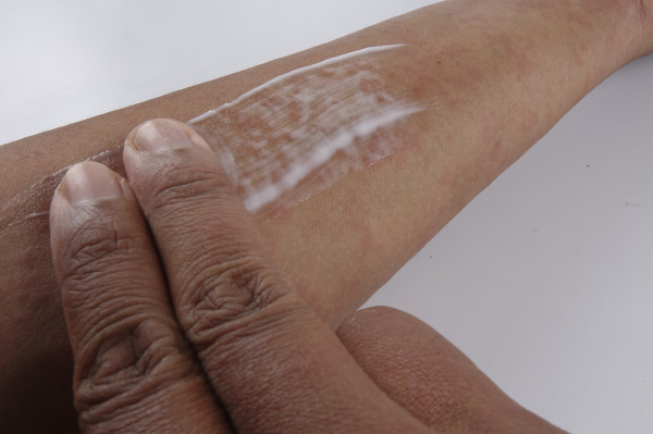 W przypadku atopowego zapalenia skóry stosowanie emolientów staje się rutyną.
